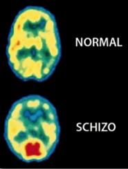 normal-vs-schizo-pet